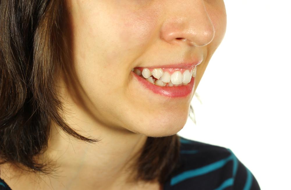 У девушки торчат зубы